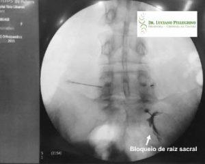 Infiltração na coluna - Bloqueios ou rizotomias 1