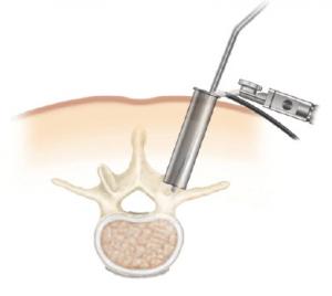 cirurgia da coluna vertebral