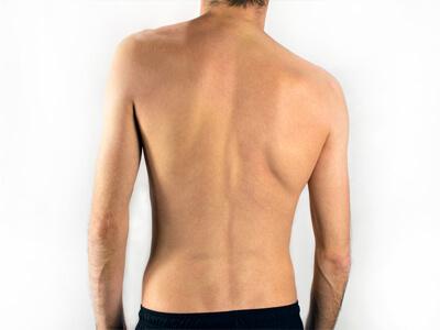 escoliose cirurgia na coluna vertebral