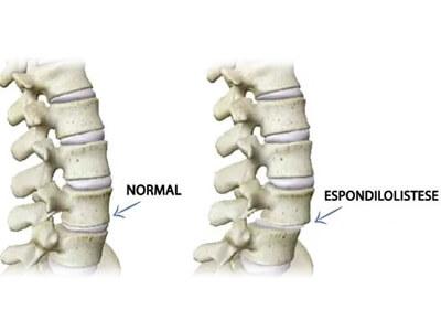espondilolistese cirurgia na coluna vertebral