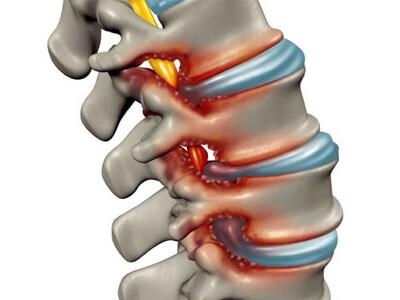 estenose do canal vertebral cirurgia na coluna vertebral