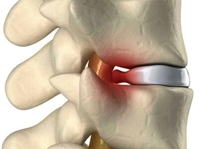 hérnia de disco cirurgia na coluna vertebral