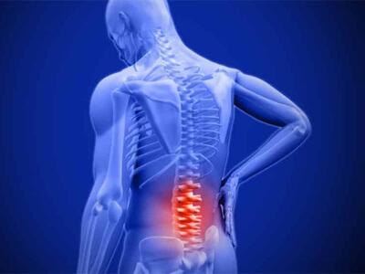 luxação na coluna cirurgia na coluna vertebral