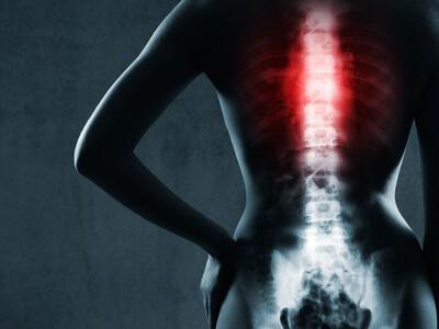 tumor cirurgia na coluna vertebral