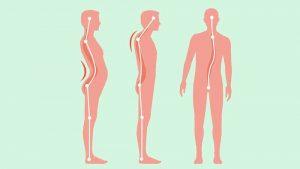 reeducação postural global problemas posturais