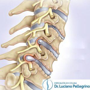 artrose na coluna