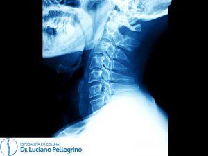 raio-x coluna cervical