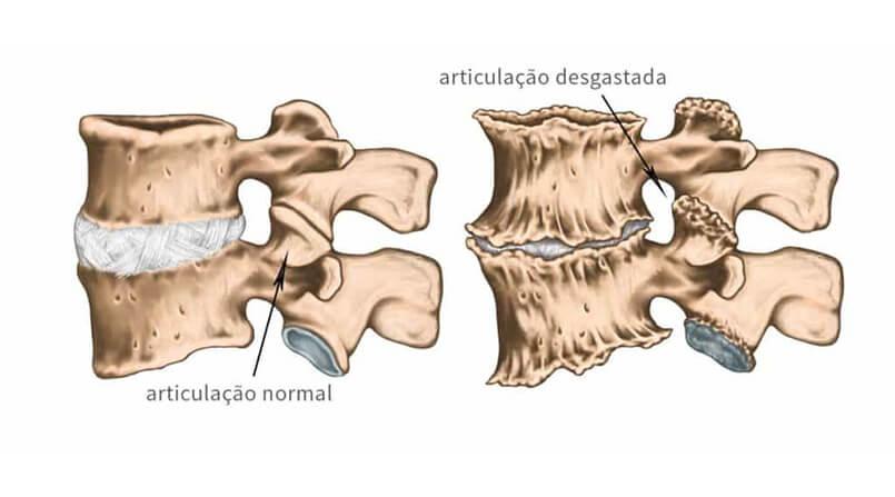 artrose na coluna tem cura