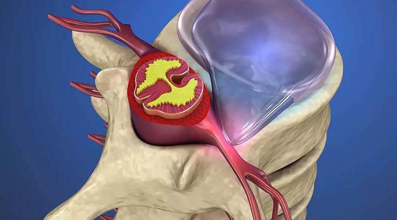 tratamento de hérnia de disco sem cirurgia